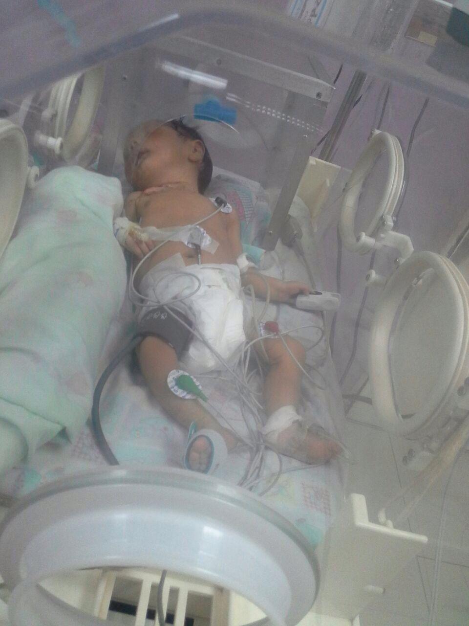 Marcos, un bebé que se debate entre la vida y la muerte