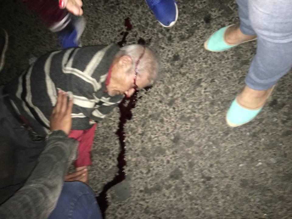 Anciano muere tras ser atropella por un conductor imprudente